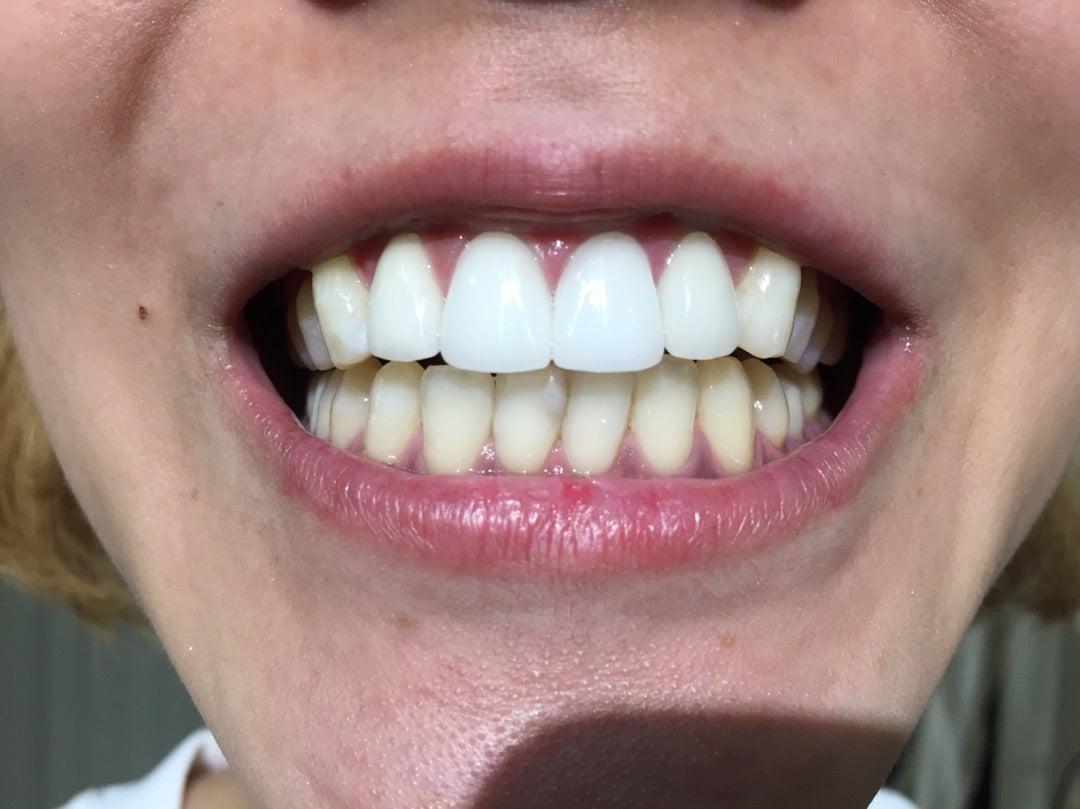 前歯 差し歯 できない 差し歯がグラグラで、インプラントができないと言われました。