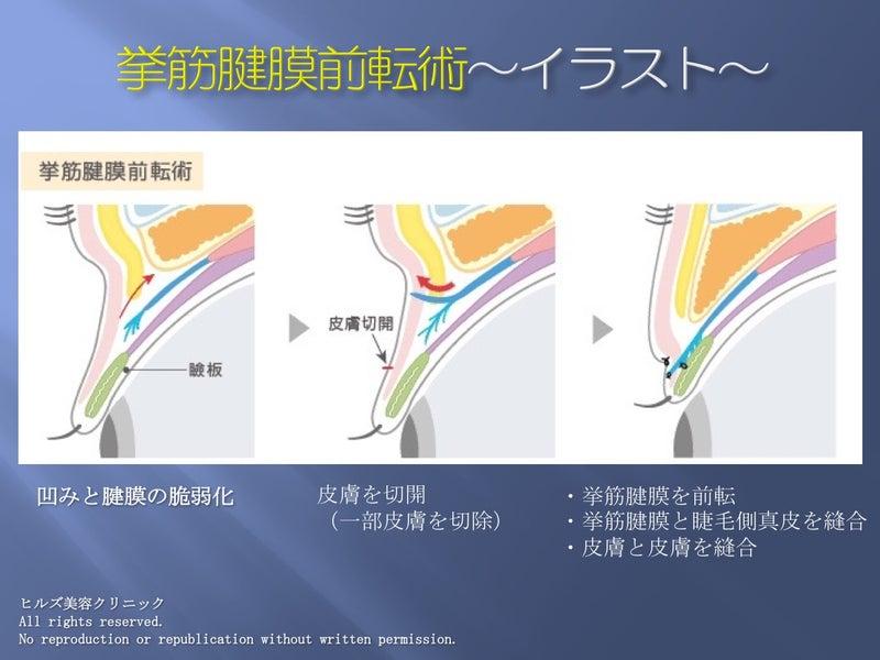 挙筋腱膜前転術 イラスト