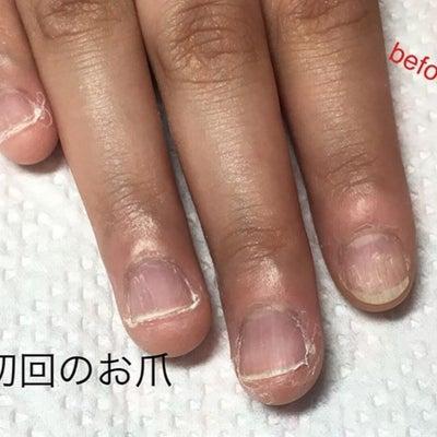 深爪、噛み爪でお悩みの方必見で~~す!!の記事に添付されている画像
