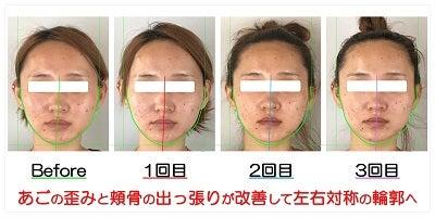 あごの歪みと頬骨の出っ張りが改善して左右対称の輪郭へ