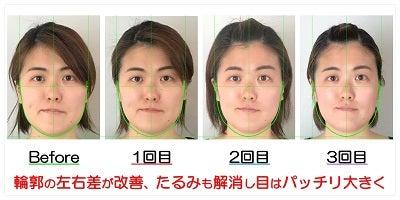 輪郭の左右差が改善、たるみも解消し目はパッチリ大きく
