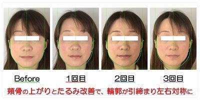 頬骨の上がりとたるみ改善で、輪郭が引締まり左右対称に