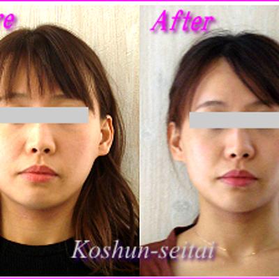 顔の歪み改善!噛み合わせ良くなって面長も解消しましたの記事に添付されている画像