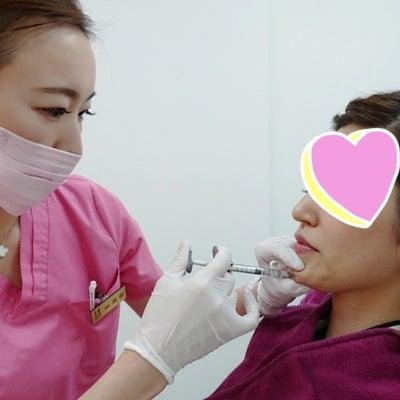 顎にヒアルロン酸注入♪横顔美人に♪の記事に添付されている画像