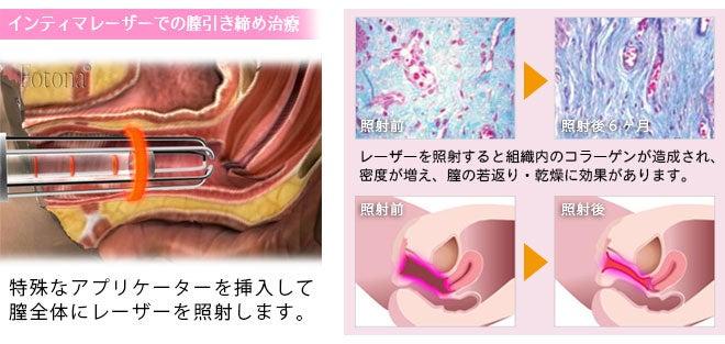 """鹿児島で膣の治療""""インティマレーザー""""のご紹介"""
