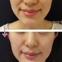 ヒアルロン酸で早めのたるみ予防の記事に添付されている画像