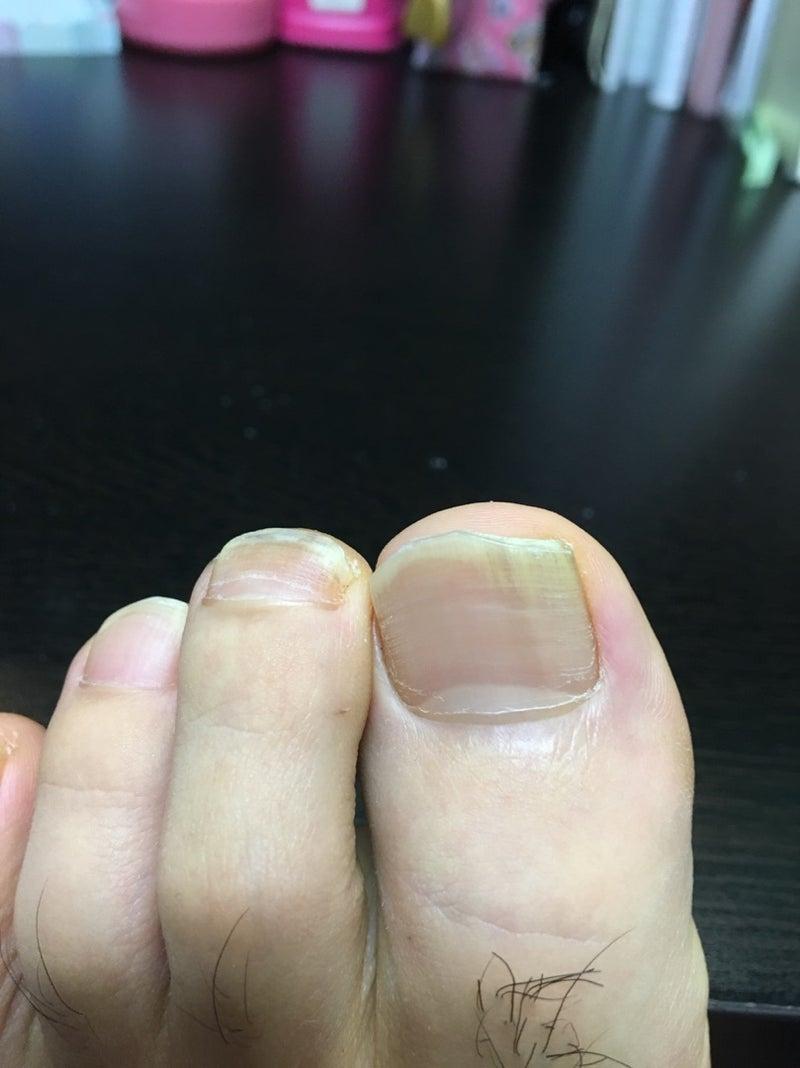水虫 完治 ブログ 爪
