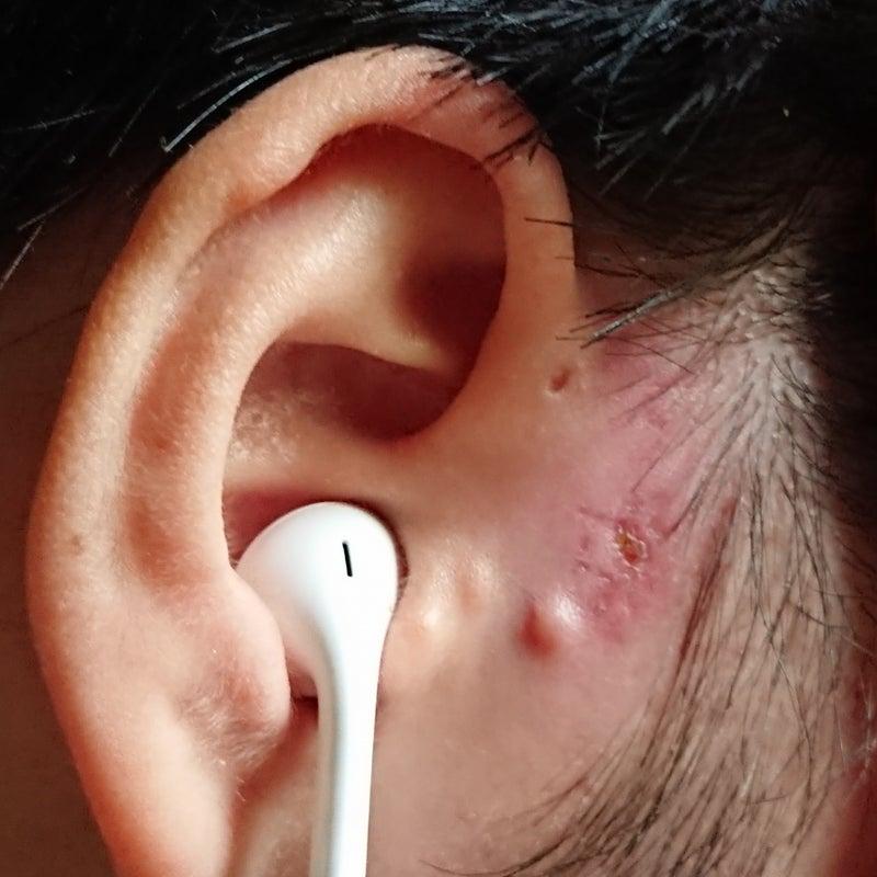 耳 瘻孔 臭い