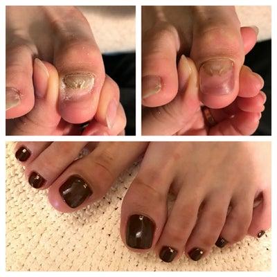 爪のリペアネイルケアとフットジェルの記事に添付されている画像