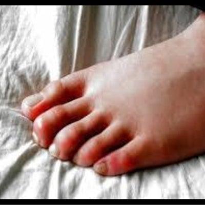 あなたの足の形は大丈夫??の記事に添付されている画像