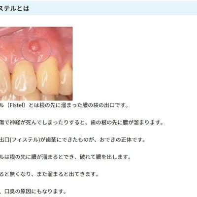 歯茎のできもの フィステル 大変なことになってる予感 ><; 追記ありの記事に添付されている画像