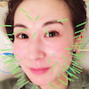 美容鍼でフェイスラインがキュッと上がった♡♡の画像