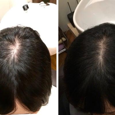 10月期間限定『発毛モニター』発毛実績98%‼️お急ぎくださいの記事に添付されている画像