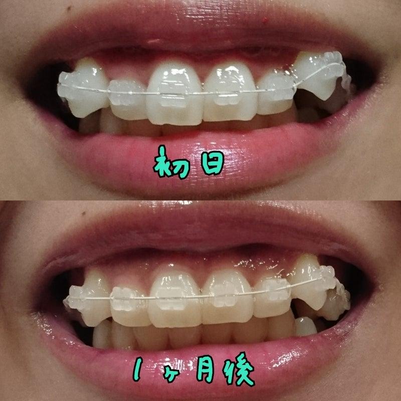 ビフォー アフター 列 矯正 歯