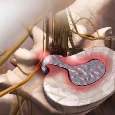 ヘルニアを鍼灸で治したい人への記事に添付されている画像