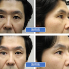 義眼の上眼瞼陥凹への治療の記事より