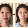 10月限定の小顔体験!の画像