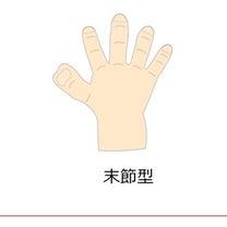娘の6本目の指が…の記事に添付されている画像