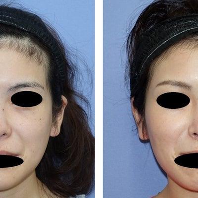 プロテーゼ入替、鼻尖形成、鼻中隔延長、耳介軟骨移植 術後4ヵ月弱の記事に添付されている画像