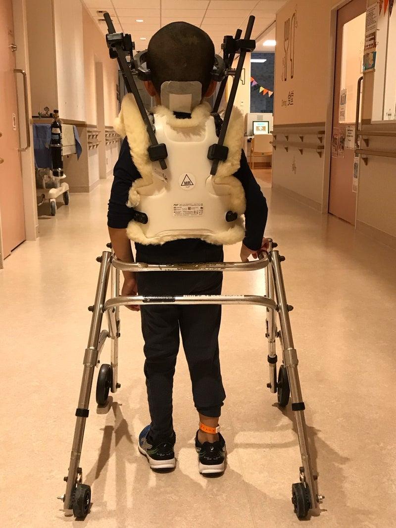 看護 ハロー ベスト 軸椎骨折の症状・診断・治療 [骨・筋肉・関節の病気]