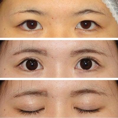 全切開による眼瞼下垂手術+ROOF切除(+鼻プロテーゼ) 術後6ヵ月の記事に添付されている画像