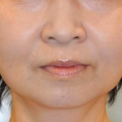 頬下ふっくらスッキリ♪脂肪溶解注射モニター様の記事に添付されている画像