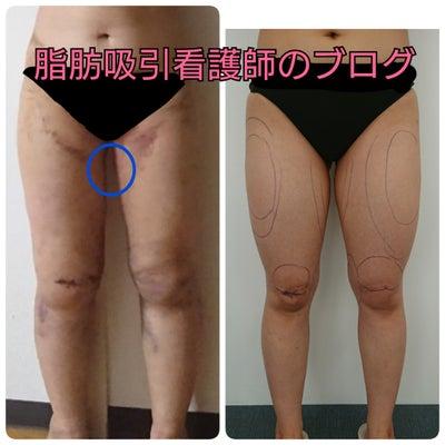 脂肪吸引5日目の記事に添付されている画像