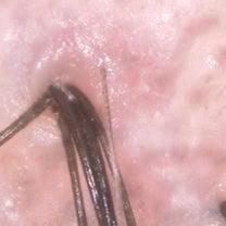 一つの毛穴から6本毛髪が生えている画像の記事に添付されている画像