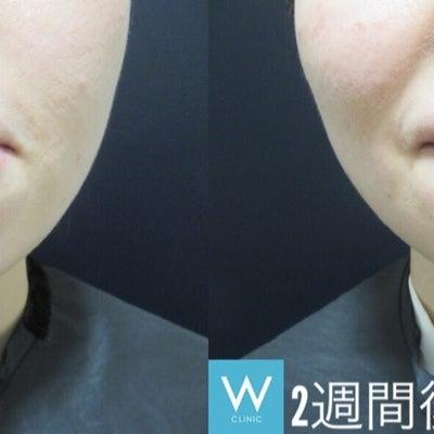 梅干し顎にはボトックス注射♡~大阪・心斎橋・WCLINIC~の記事に添付されている画像