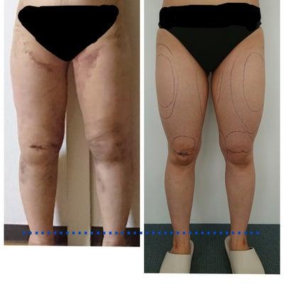 脂肪吸引6日目の記事に添付されている画像