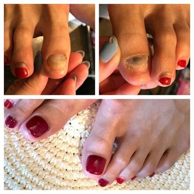 爪のリペア 人工爪とフットジェルの記事に添付されている画像