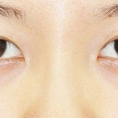 20代女性「埋没法二重術(エクセレントアイ)+目尻切開+下眼瞼下制術」術後1週間の記事に添付されている画像