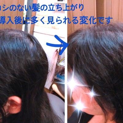 育毛発毛モニター募集 残りわずかとなりましたの記事に添付されている画像