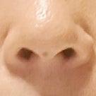 ☆10日間で、頬のシミや肌のハリに変化がありました!の記事より