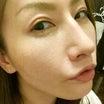 鼻 術後15日