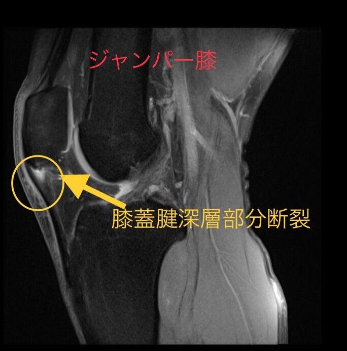 ジャンパー膝 構造的な破綻を防ぐ 休むか?休まないか? | 新浦安しんもり整骨院 入船院