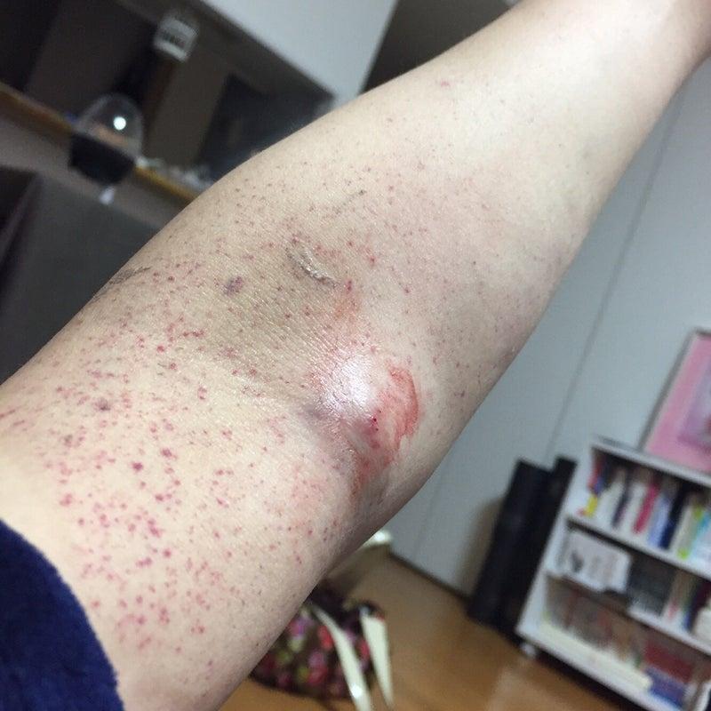 特発 性 血小板 減少 性 紫斑 病 ガイドライン