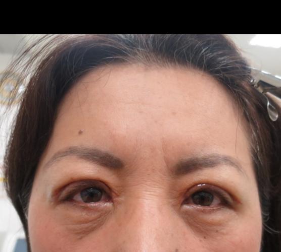 眼瞼下垂 術後の経過の写真(1)