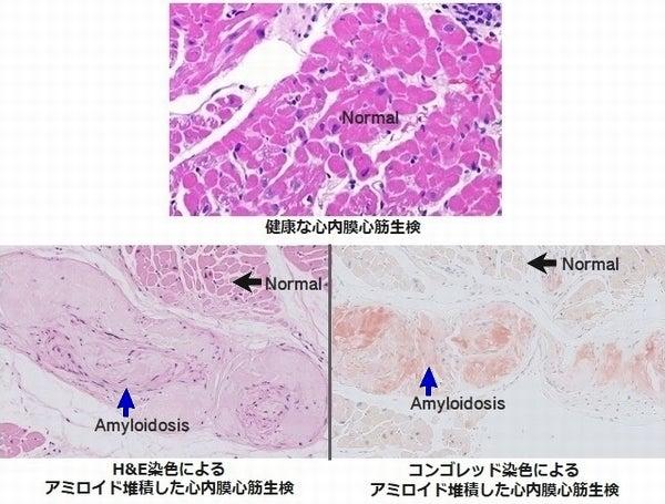 遺伝性ATTRアミロイドーシスの心内膜心筋生検