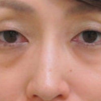 30代女性 目の下のクマ治療+シミ治療(脱脂+グロースファクター、メラフェード)の記事に添付されている画像