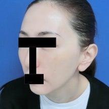 【症例写真】小顔効果…