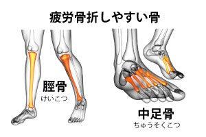 疲労 骨折 足首 足首の骨折で歩けるまでの期間を短縮するポイント