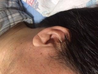 耳たぶ の 後ろ の ほくろ 人相学で見るほくろの意味34パターン!顔にあるほくろの位置で運勢が...