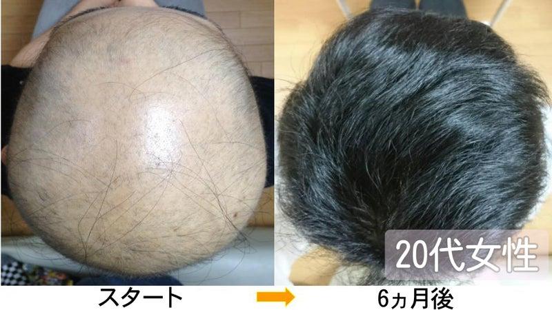 20代女性の円形脱毛症改善実績写真