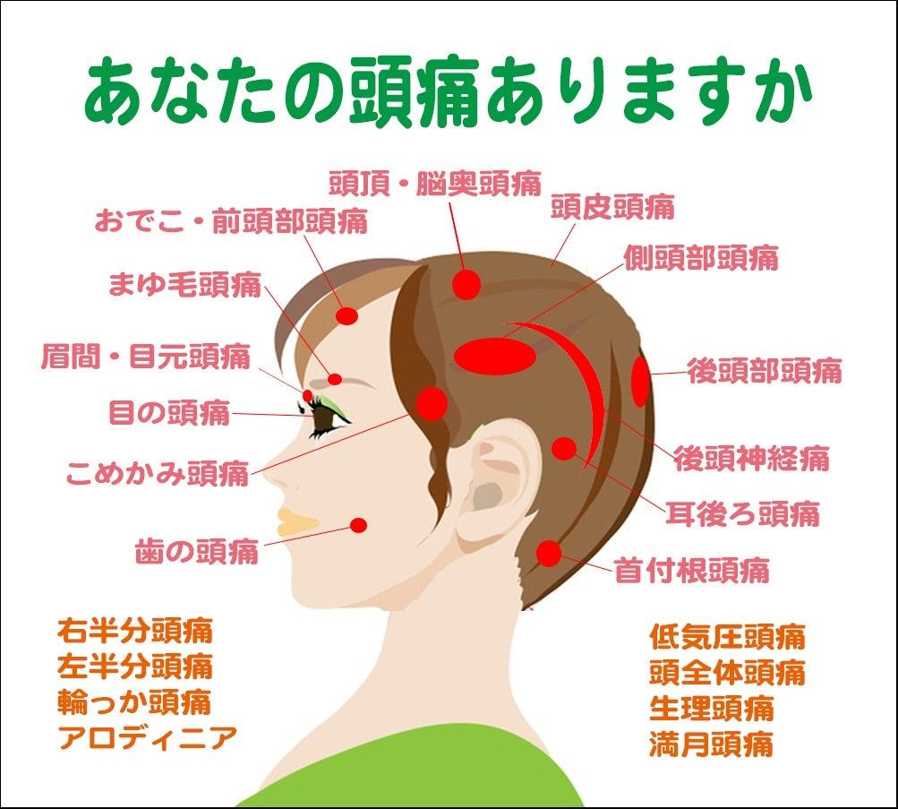 の 上 こめかみ 頭痛