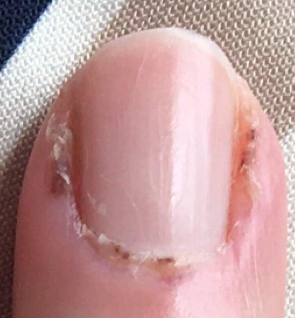 私の皮膚筋炎初期の手の写真です | mico【間質性肺炎・皮膚筋炎 ...