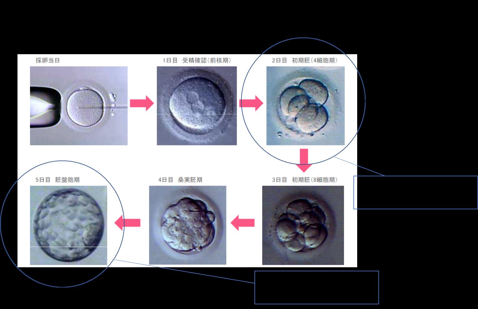 初期胚移植か胚盤胞移植か!?どちらが良いのでしょうか。その違いとは ...