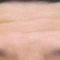50代女性 グロースファクターによる額のシワ治療 6カ月後の経過の記事に添付されている画像