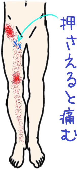 ゴリゴリ 股関節
