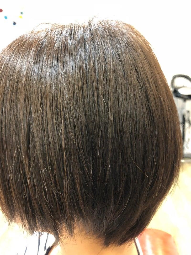 髪の毛 卵巣 嚢腫